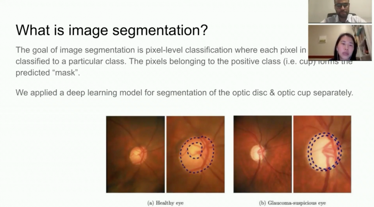 Johnson & Johnson: AI-Assisted Estimation of Cup to Optic Disc Ratio from Human Retina Images in the Google Cloud Platform